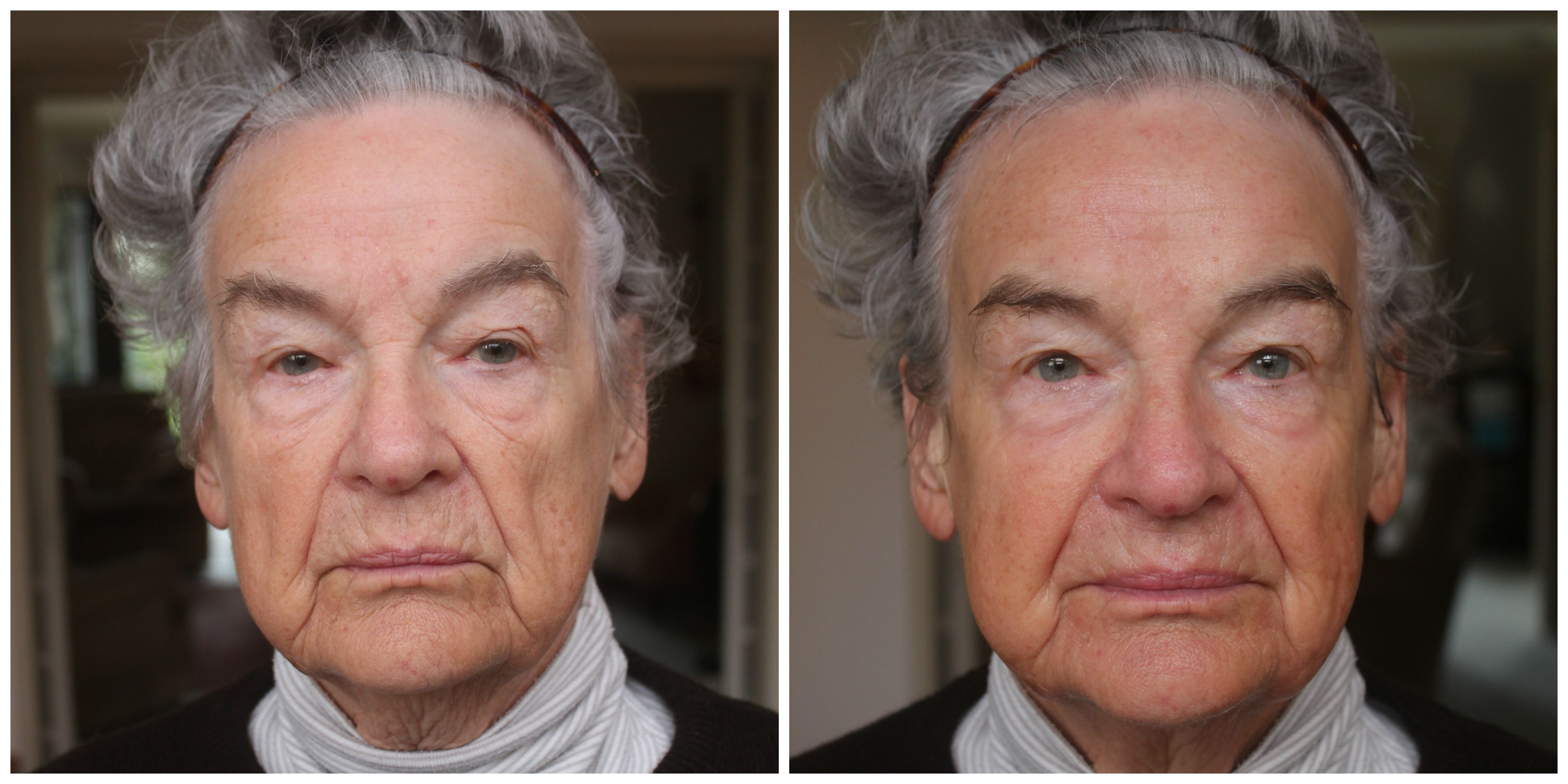 Nan Before and After